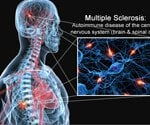 The Effects of Multiple Sclerosis