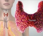 Thyroid Conditions & Treatments