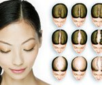 Women's Hair Loss Slideshow Pictures