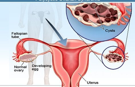 Related Keywords   Suggestions for    ovarian       cyst       diagram