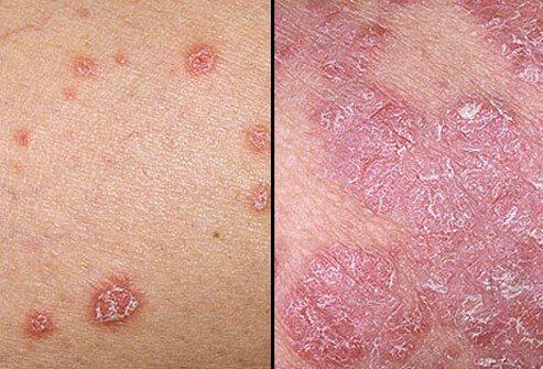 Psoriasis is a non-contagious skin disease which causes patches of thick, red skin covered with silvery scales 3