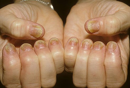 therapy for psoriasis