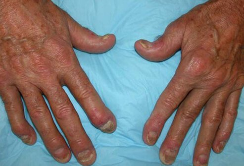 As its name suggests, psoriatic arthritis is associated with psoriasis and arthritis 2