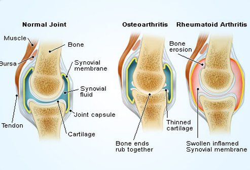 This illustration shows the differences between a normal, healthy joint, a joint affected by osteoarthritis, and one affected by rheumatoid arthritis.