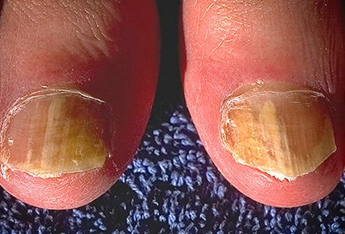 Picture of Ringworm of the Nails