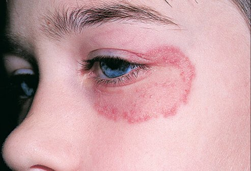 ringworm on the face #9