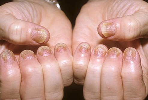 Nail disease is common in patients with psoriasis and is associated with a 2