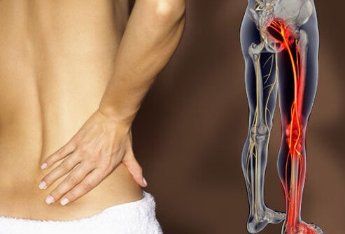 Photo of lower back pain.