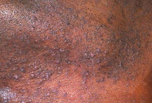 Common Adult Skin-Problem Pictures: Identify Rashes ...