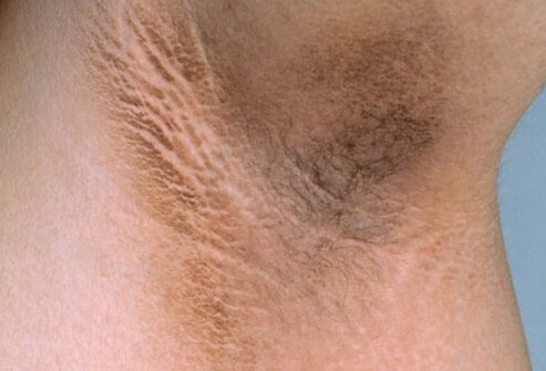 Velvet plaque around the armpit may suggest diabetes.