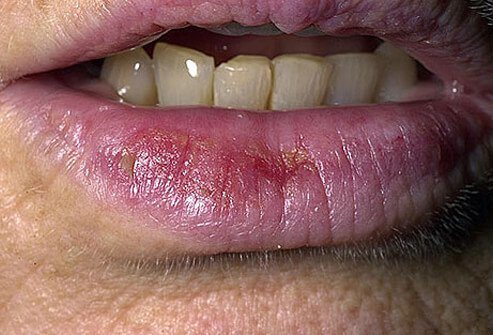 Picture of Actinic Cheilitis