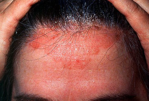 It also causes the dandruff that comes with scalp psoriasis 1