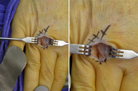 Intraoperative photos of the author's right third metacarpophalangeal joint