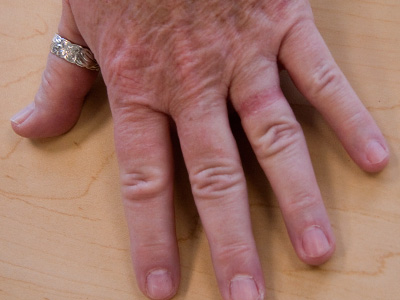 Picture of wedding ring rash (wedding ring dermatitis)
