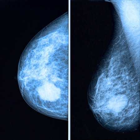 Breast cancer pictures