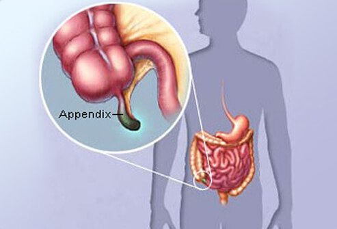 early appendicitis symptoms, signs, pain, causes, test, & surgery, Cephalic Vein