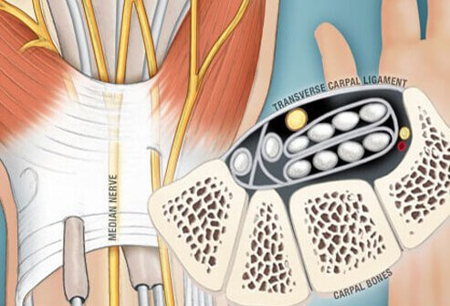 Carpal Tunnel Syndrome Pictures: Anatomy, Where It Hurts, and More