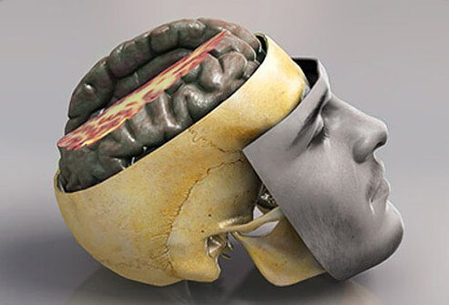 Concussions & Brain Injuries: Symptoms, Tests, Treatment
