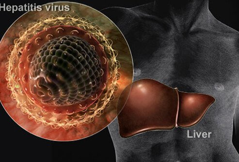 Hepatitis in Pictures: What Puts You at Risk?