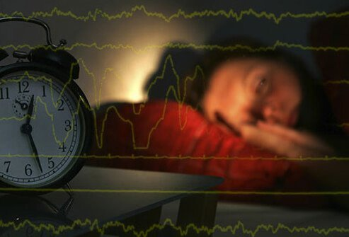 Sleep Disorders: Insomnia, Sleep Apnea, and More