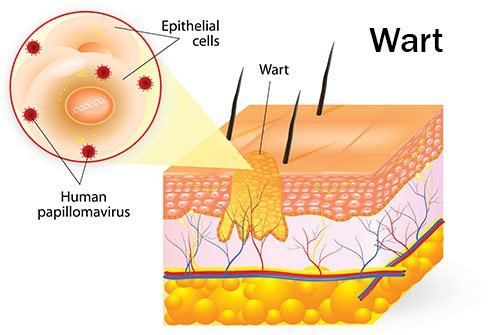 How to Get Rid of Common Warts Fast - Remedies and Cures