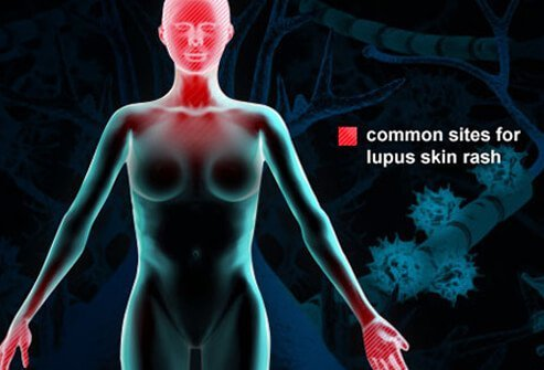 Lupus Symptoms, Rash, and Treatment