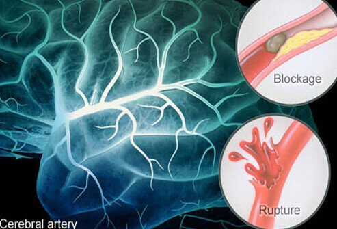 Brain Hemorrhage Symptoms, Survival Rate, Treatment & Recovery