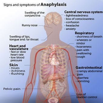 Illustration of anaphylaxis signs and symptoms.