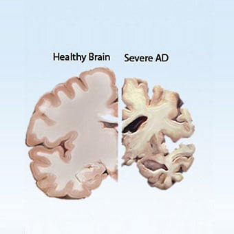 The cross section of a healthy brain in contrast with a diseased brain.