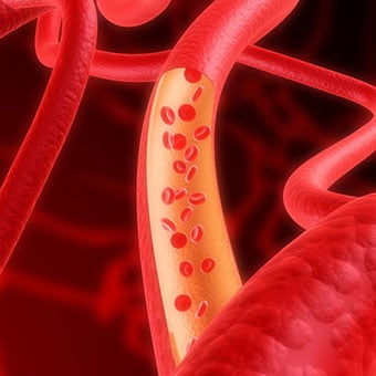 Image illustrating red blood cells within human arteries.