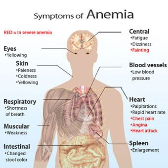 Image result for anemia