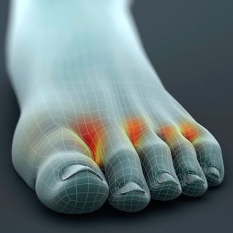 A 3-D model of a foot highlights the presence of fungal athlete's foot.