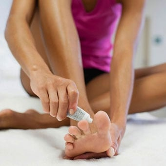 A woman applies antifungal cream for her athlete's foot.