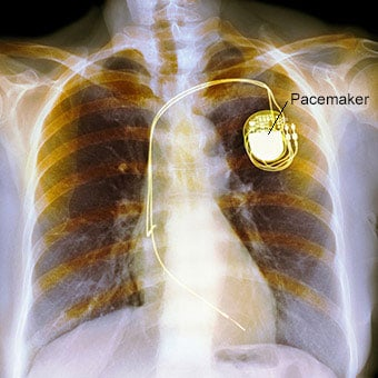 Colored X-ray of the chest of a patient with a dual chamber pacemaker.