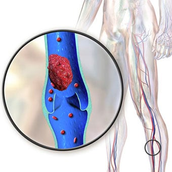 A picture of deep vein thrombosis.