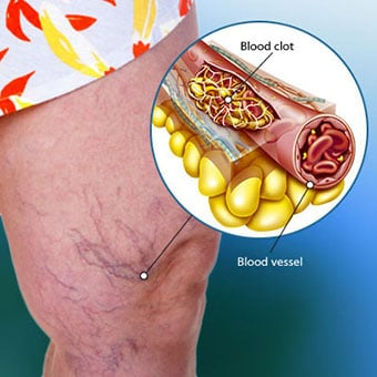 Blood Clot Symptoms (Leg, Lungs), Causes, and Detection