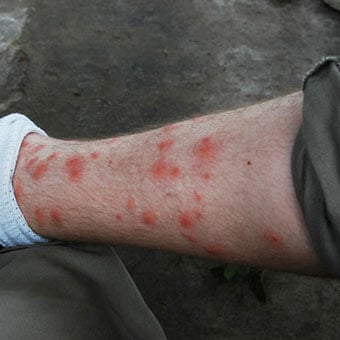 5 Signs And Symptoms Of Chiggers Bites How To Get Rid Of Them