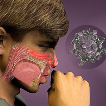 An illustration depicts cold viruses entering the nose.