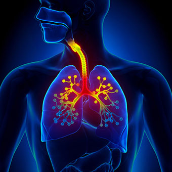 Infections such as bronchitis or pneumonia can cause acute cough or a chronic cough.