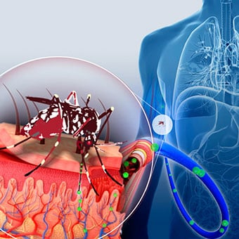 The virus that causes dengue fever is transmitted to a person through an Aedes mosquito bite.