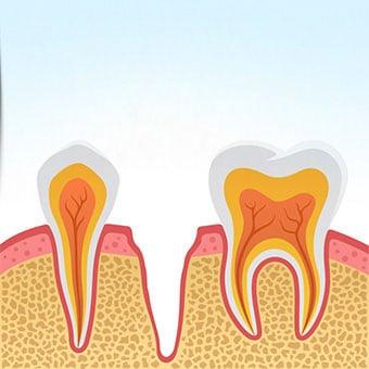 Dry Socket Tooth Extraction Infection Pain Treatment