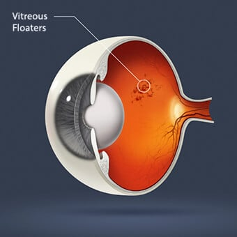 Any cellular material within the vitreous may cause eye floaters.