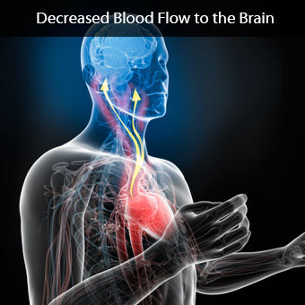 Illustration showing decreased blood flow to the brain.
