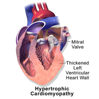Illustration of hypertrophic cardiomyopathy.