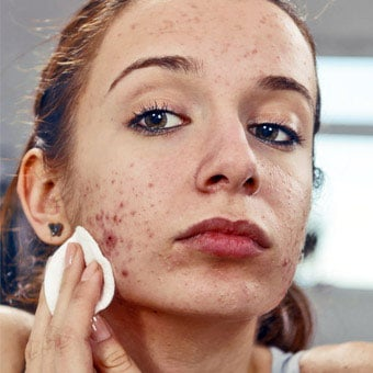 A girl has acne vulgaris.