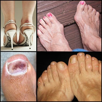Bruises, bunions, corns, and blisters are common causes of foot pain as shown here.