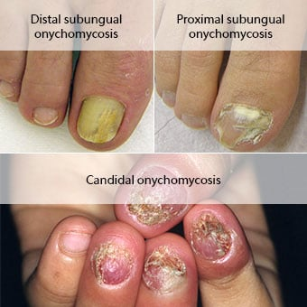 Image result for fungal nail