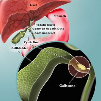 Illustration of the digestive system with gallstones and close up of gallstones in the gallbladder a stone that has also passed in to the cystic duct.