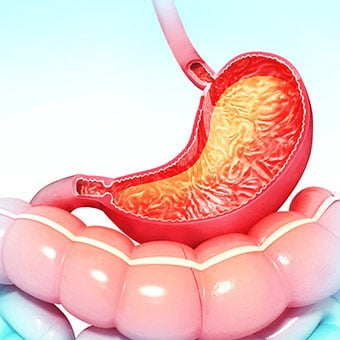 Gastritis: Stomach Inflammation Diet, Symptoms & Cure