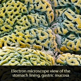 Gastritis is caused by inflammation of the stomach lining also known as the gastric mucosa.